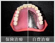 メタルプレート (金属床義歯)
